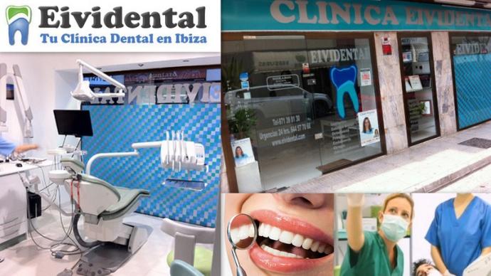 EIVIDENTAL Clinica Dental Calle Abad y Lasierra,  5 07800  Ibiza (Eivissa) Telf.  (+34)  971 398 130   Su compromiso es la entrega y la profesionalidad hacia sus pacientes